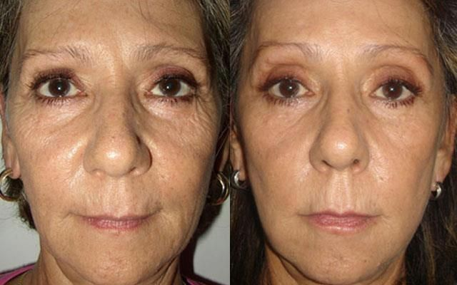 Effet du serum rejuvenation luminesce